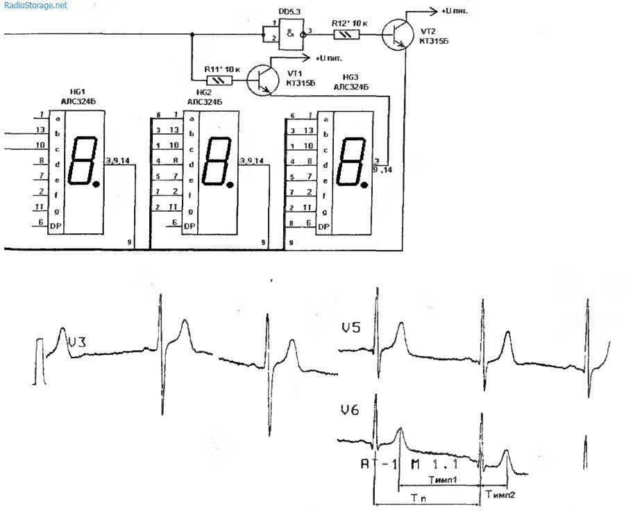 Схема цифрового измерителя частоты пульса